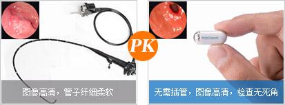 普通内镜与omom胶囊内镜优势对比图